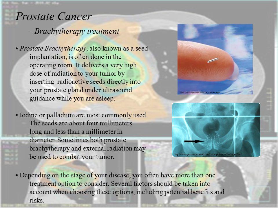 Prostate Cancer Brachytherapy Cialis Daily