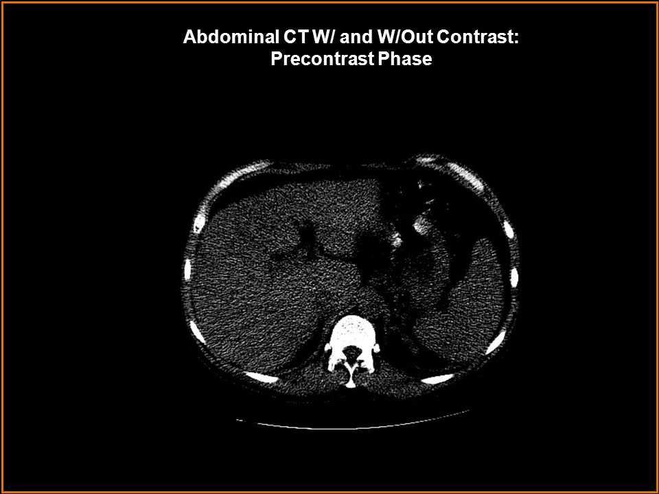 Abdominal CT W/ and W/Out Contrast: Precontrast Phase