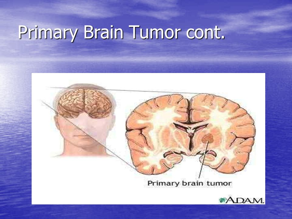 Primary Brain Tumor cont.