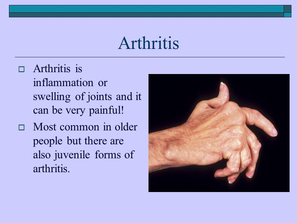Arthritis  Arthritis is inflammation or swelling of joints and it can be very painful.