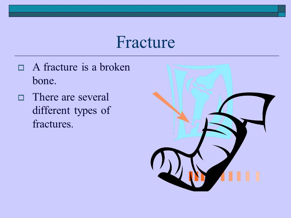 Fracture  A fracture is a broken bone.  There are several different types of fractures.