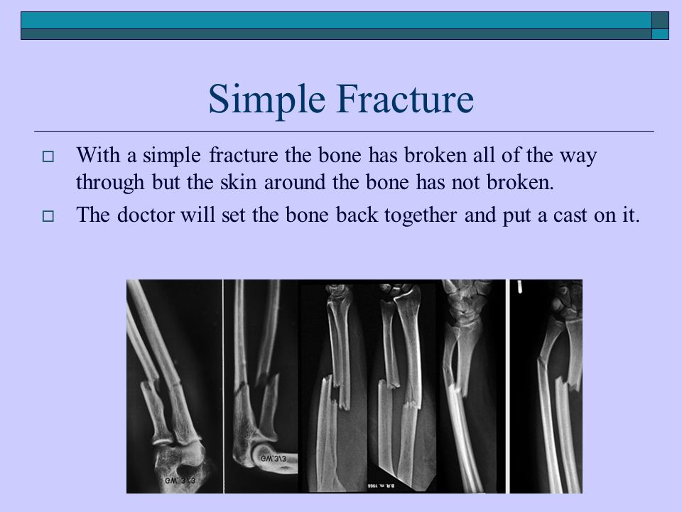 Simple Fracture  With a simple fracture the bone has broken all of the way through but the skin around the bone has not broken.