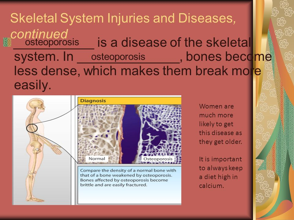 essay on skeletal disease The skeletal system performs several vital functions and can be affected by several humans have been dealing with injuries and disease from the beginning of.