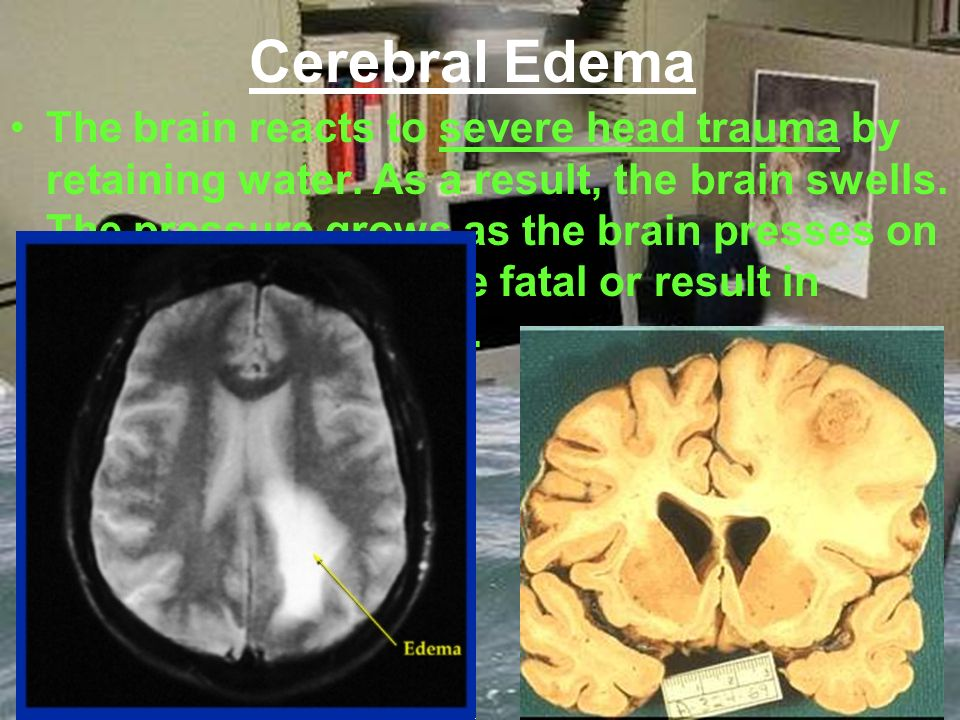 Cerebral Edema The brain reacts to severe head trauma by retaining water.