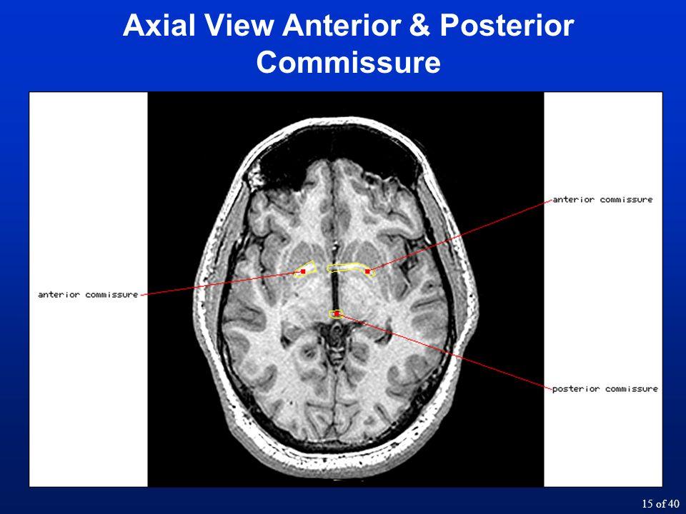 1 Of 40 Lecture 4 Neuroanatomy Walter Schneider When We Talk About