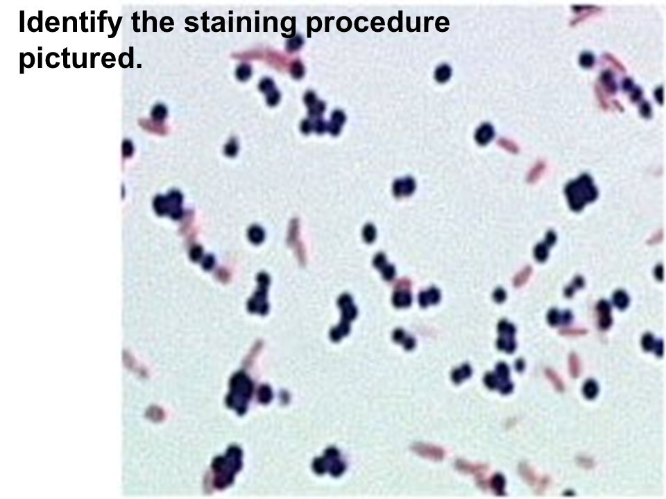 Identify the staining procedure pictured.