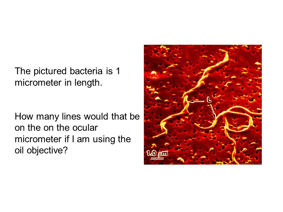 The pictured bacteria is 1 micrometer in length.