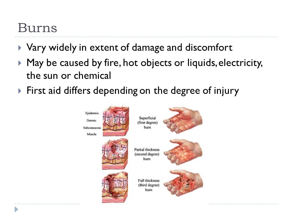 Burns  Vary widely in extent of damage and discomfort  May be caused by fire, hot objects or liquids, electricity, the sun or chemical  First aid differs depending on the degree of injury