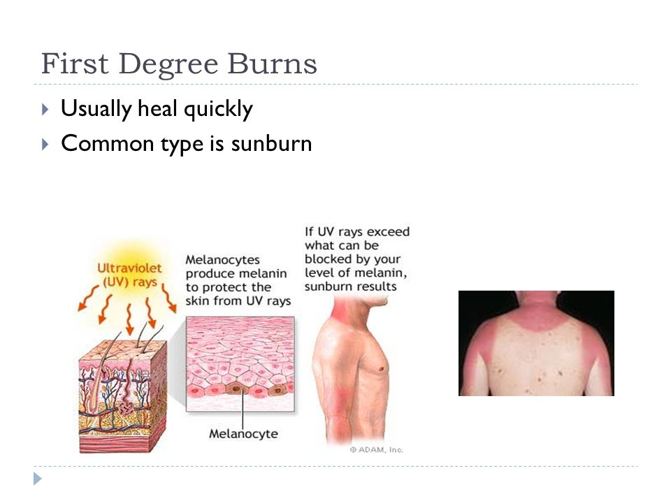 First Degree Burns  Usually heal quickly  Common type is sunburn