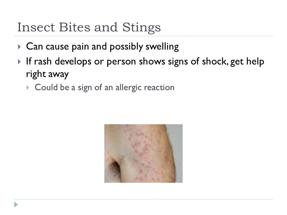 Insect Bites and Stings  Can cause pain and possibly swelling  If rash develops or person shows signs of shock, get help right away  Could be a sign of an allergic reaction