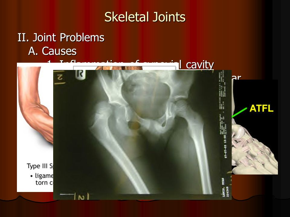 Skeletal Joints II. Joint Problems A. Causes 1. Inflammation of synovial cavity 2.