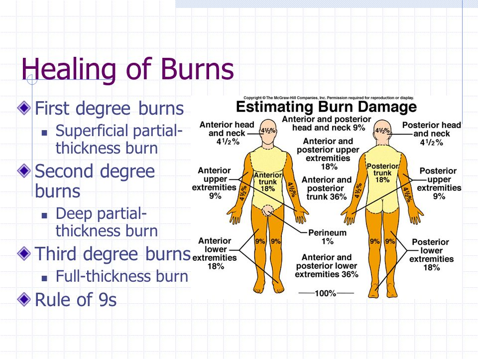 Healing of Burns First degree burns Superficial partial- thickness burn Second degree burns Deep partial- thickness burn Third degree burns Full-thickness burn Rule of 9s