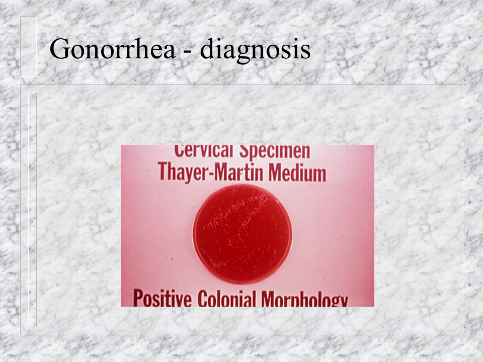 Gonorrhea - diagnosis