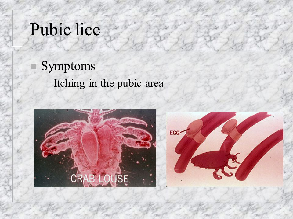 Pubic lice n Symptoms – Itching in the pubic area
