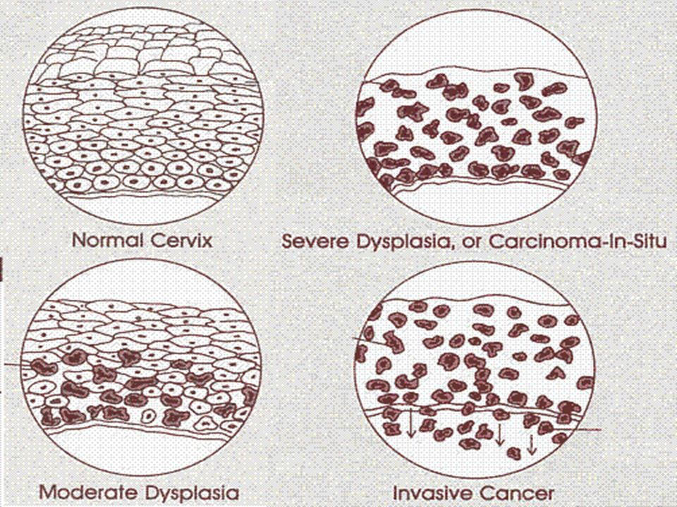 Cervical Intraepithelial Neoplasia (CIN) or Dysplasia CIN I (mild) Involves deeper 3rd of epithelium CIN II (moderate) Involves more than half thickness of epithelium CIN III (severe) Whole thickness of epithelium shows abnormal changes