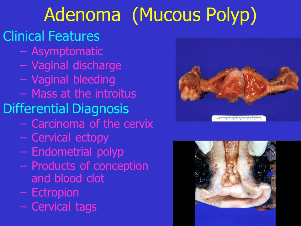 Adenoma (Mucous Polyp) Treatment –Asymptomatic must be removed and examined by the histopathologist –Adenoma may be avulsed easily without anaesthesia –Base of the polyp should be cauterized to avoid recurrence –Perform curettage