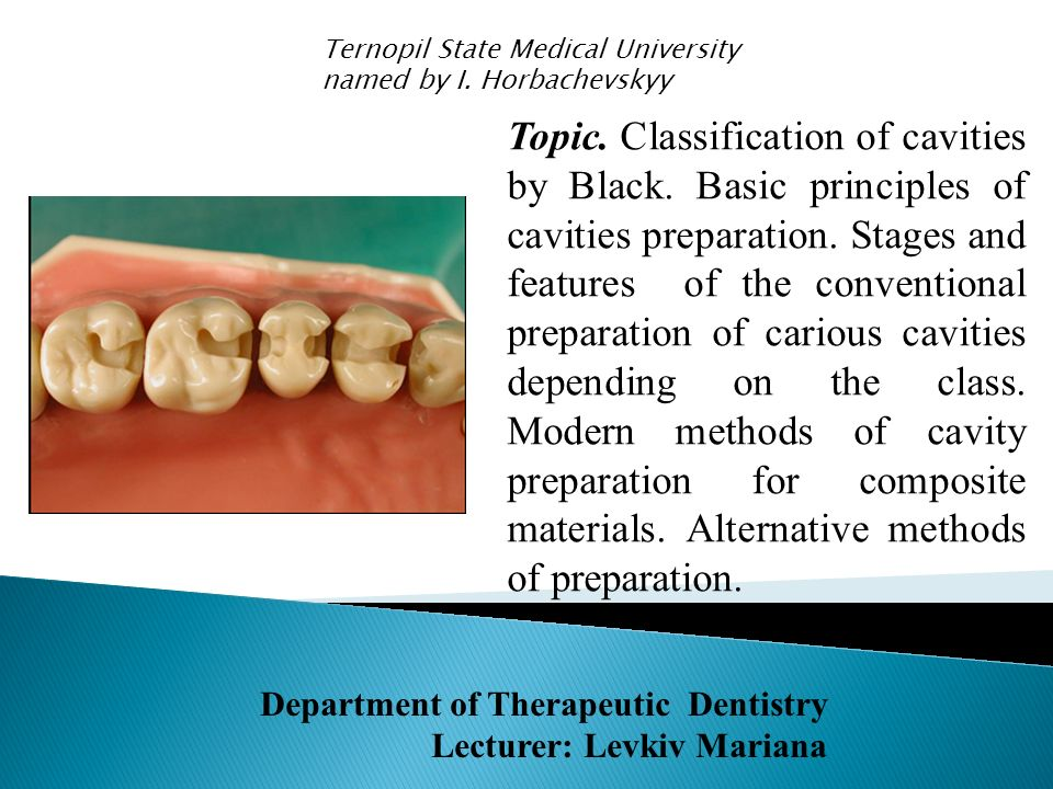 Topic.Classification of cavities by Black. Basic principles of cavities preparation.
