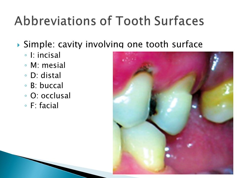  Simple: cavity involving one tooth surface ◦ I: incisal ◦ M: mesial ◦ D: distal ◦ B: buccal ◦ O: occlusal ◦ F: facial