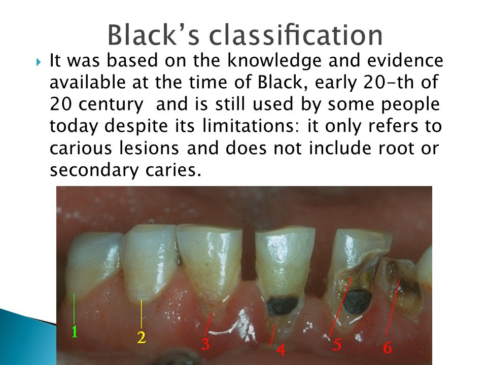  It was based on the knowledge and evidence available at the time of Black, early 20-th of 20 century and is still used by some people today despite its limitations: it only refers to carious lesions and does not include root or secondary caries.
