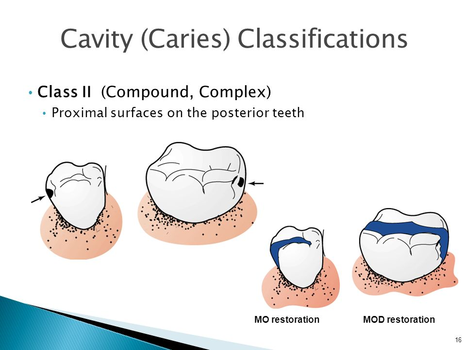 16 Cavity (Caries) Classifications Class II (Compound, Complex) Proximal surfaces on the posterior teeth MO restorationMOD restoration
