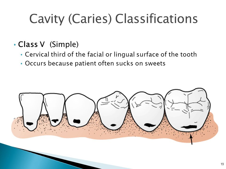 19 Cavity (Caries) Classifications Class V (Simple) Cervical third of the facial or lingual surface of the tooth Occurs because patient often sucks on sweets