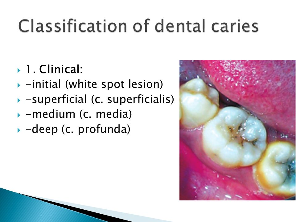  1.Clinical:  -initial (white spot lesion)  -superficial (c.