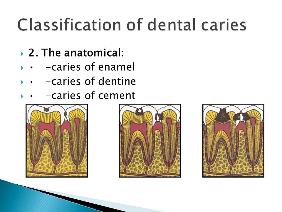  2. The anatomical: -caries of enamel -caries of dentine -caries of cement
