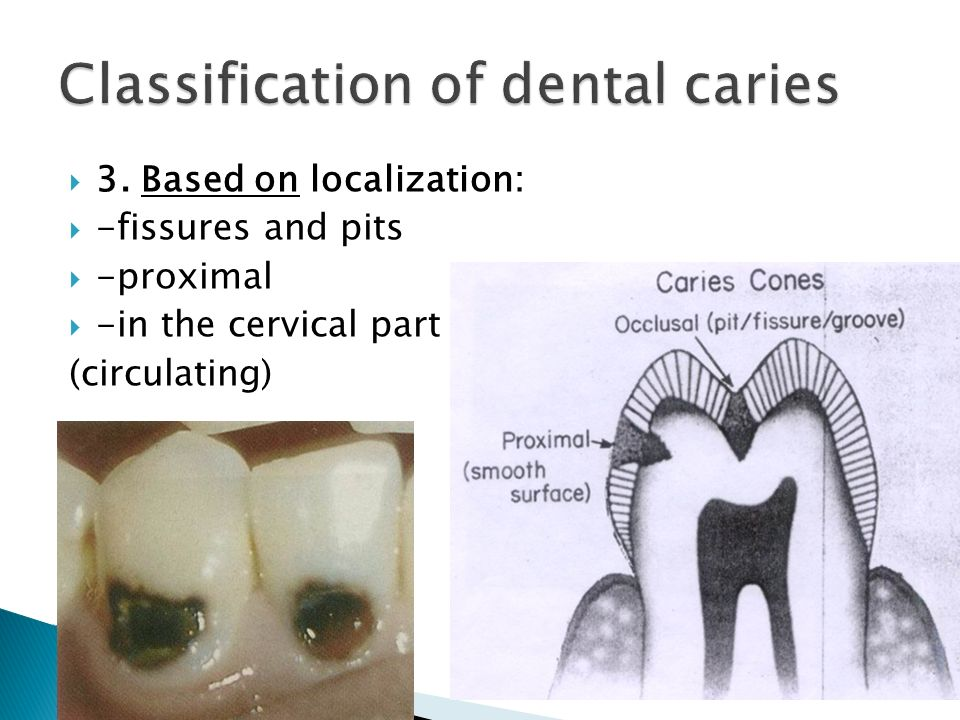  3. Based on localization:  -fissures and pits  -proximal  -in the cervical part (circulating)