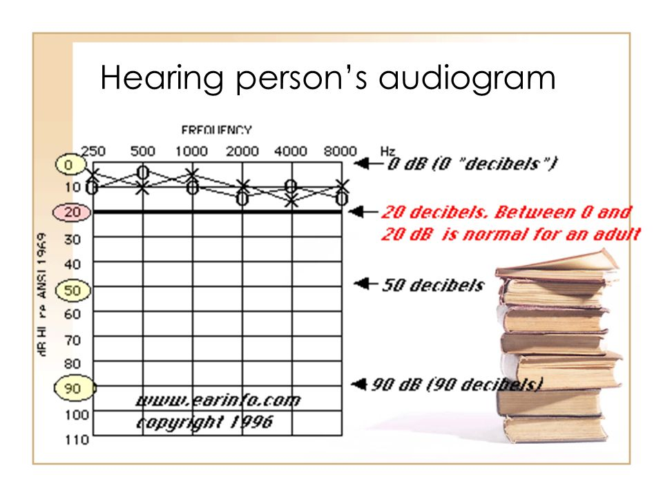 Hearing person's audiogram