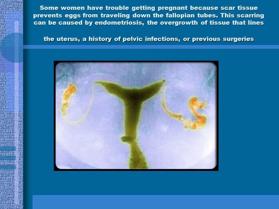 Some women have trouble getting pregnant because scar tissue prevents eggs from traveling down the fallopian tubes.