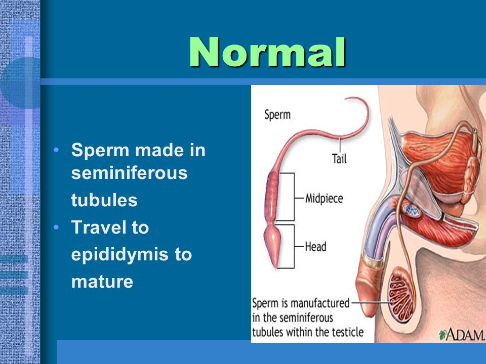 Normal Sperm made in seminiferous tubules Travel to epididymis to mature