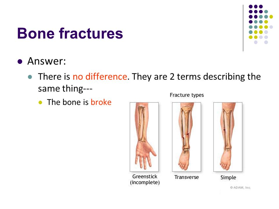 help bone fracture and bones essay So, you've broken a bone only those who have experienced a fracture can truly understand how painful and debilitating it can be recovering should be your first priority.