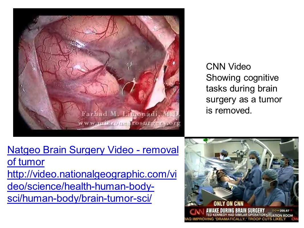 Natgeo Brain Surgery Video - removal of tumor   deo/science/health-human-body- sci/human-body/brain-tumor-sci/ CNN Video Showing cognitive tasks during brain surgery as a tumor is removed.