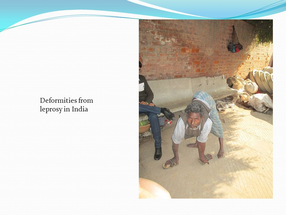 Deformities from leprosy in India