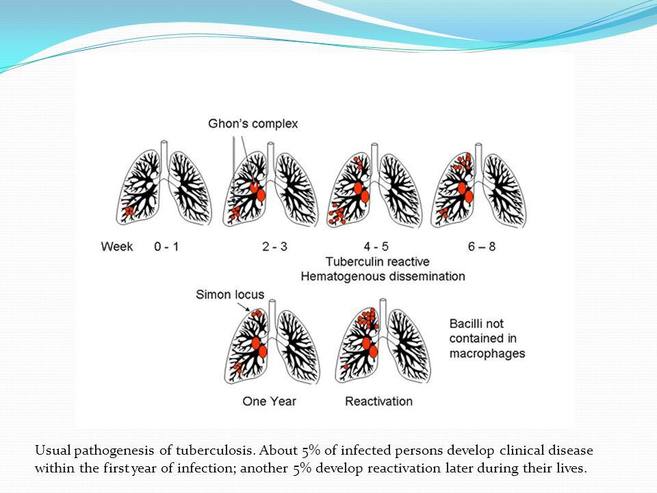 Usual pathogenesis of tuberculosis.