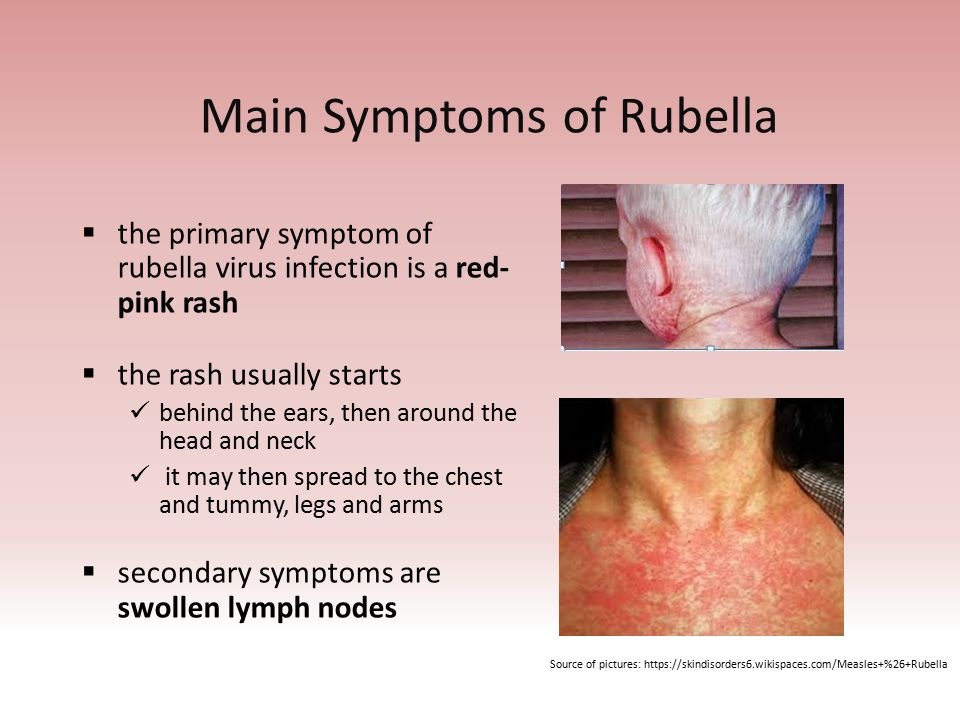 common symptoms and damages of measles essay Infectious disease essays (examples) skin and blood tissues and to discover other common symptoms and effects of damages the positive impact of this.