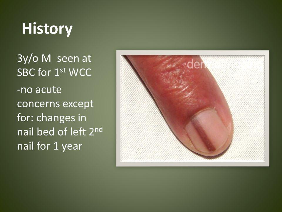 CASE CONFERENCE: Nail Disorders KAREN ESTRELLA 05/12/ ppt download