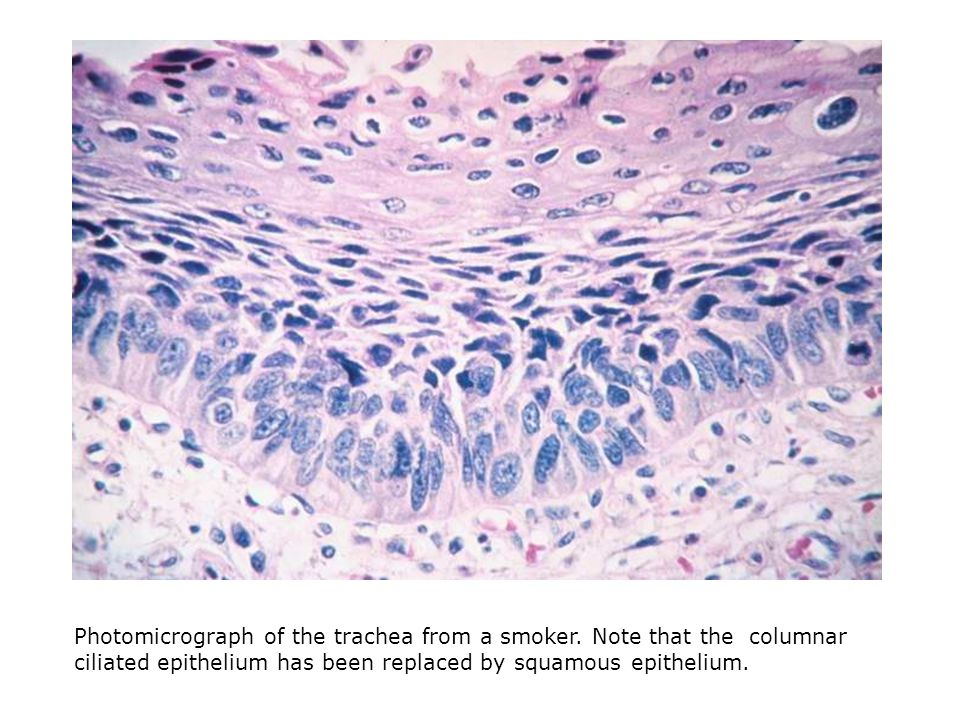 Photomicrograph of the trachea from a smoker.