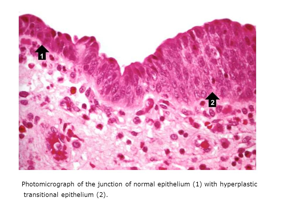 Photomicrograph of the junction of normal epithelium (1) with hyperplastic transitional epithelium (2).