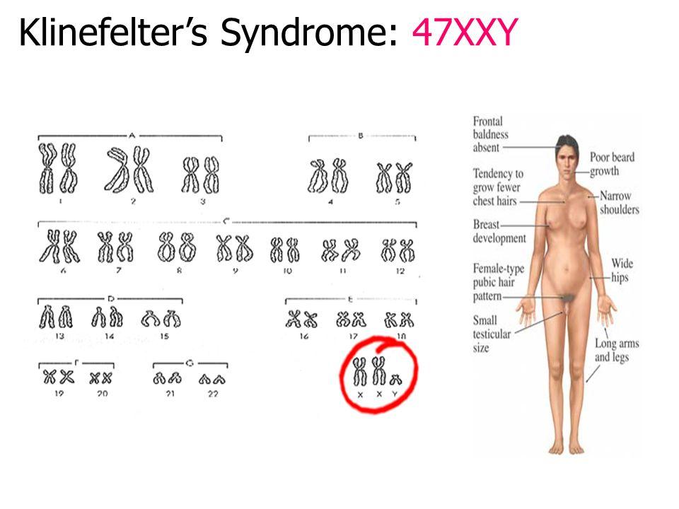 Turner's Syndrome: 45XO