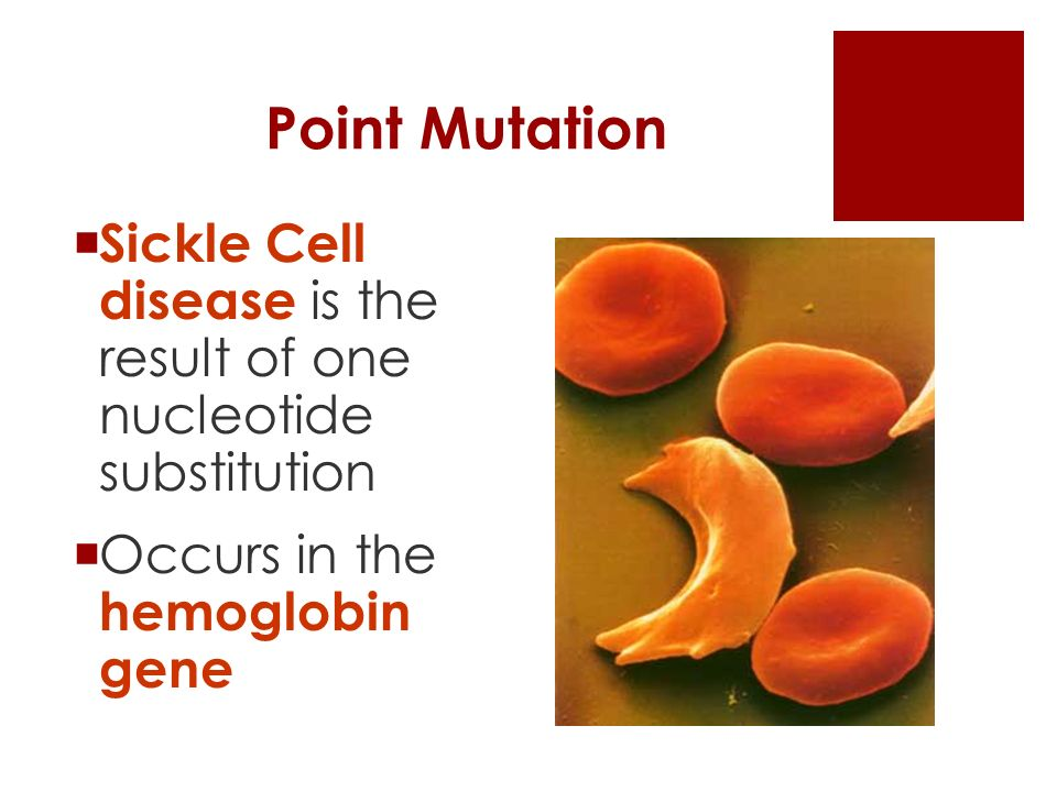 Point Mutation  Sickle Cell disease is the result of one nucleotide substitution  Occurs in the hemoglobin gene