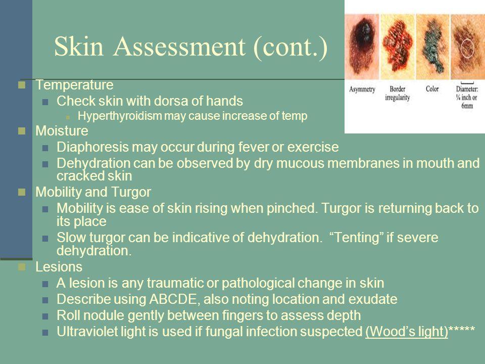 11 Skin Assessment ...  sc 1 st  SlidePlayer & Skin Hair and Nails. Anatomy Epidermis Stratum germinativum ...