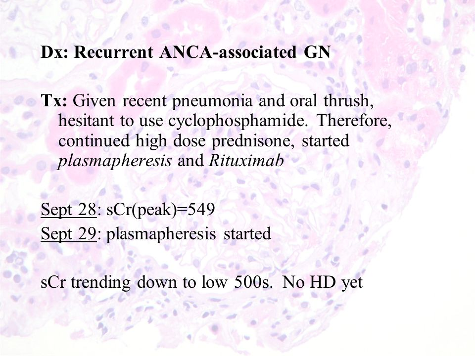 Dx: Recurrent ANCA-associated GN Tx: Given recent pneumonia and oral thrush, hesitant to use cyclophosphamide.