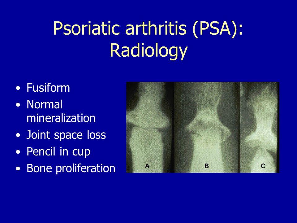 psoriasis psoriatic arthritis