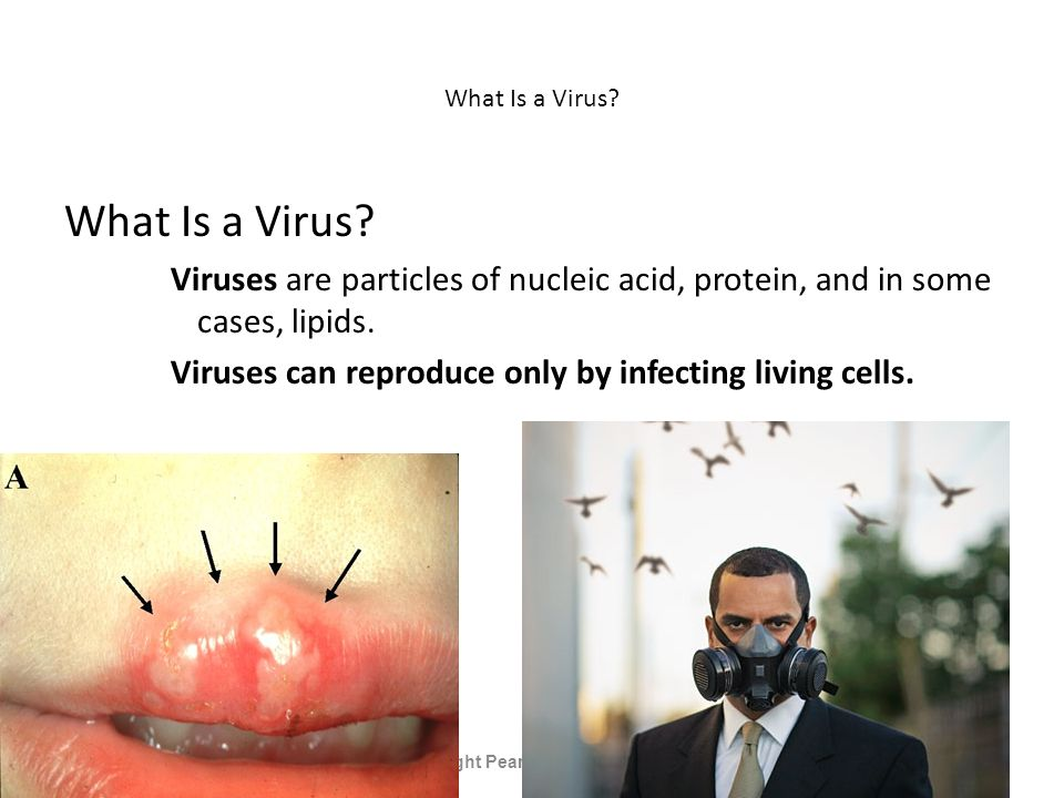 What Is a Virus. Viruses are particles of nucleic acid, protein, and in some cases, lipids.