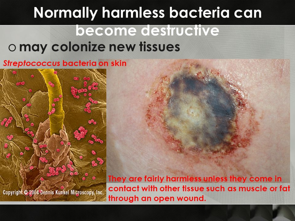 Normally harmless bacteria can become destructive o may colonize new tissues Streptococcus bacteria on skin They are fairly harmless unless they come in contact with other tissue such as muscle or fat through an open wound.