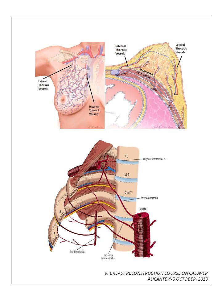 Tolle Epigastrische Arterie Anatomie Galerie - Menschliche Anatomie ...