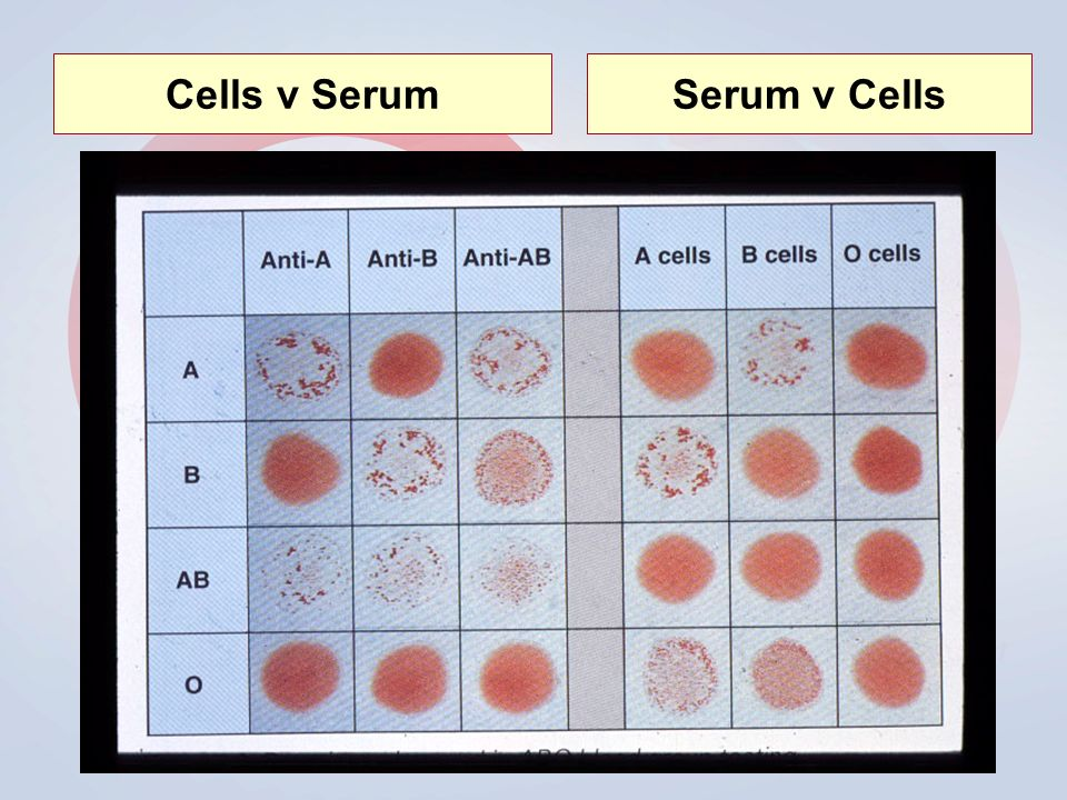 Cells v SerumSerum v Cells