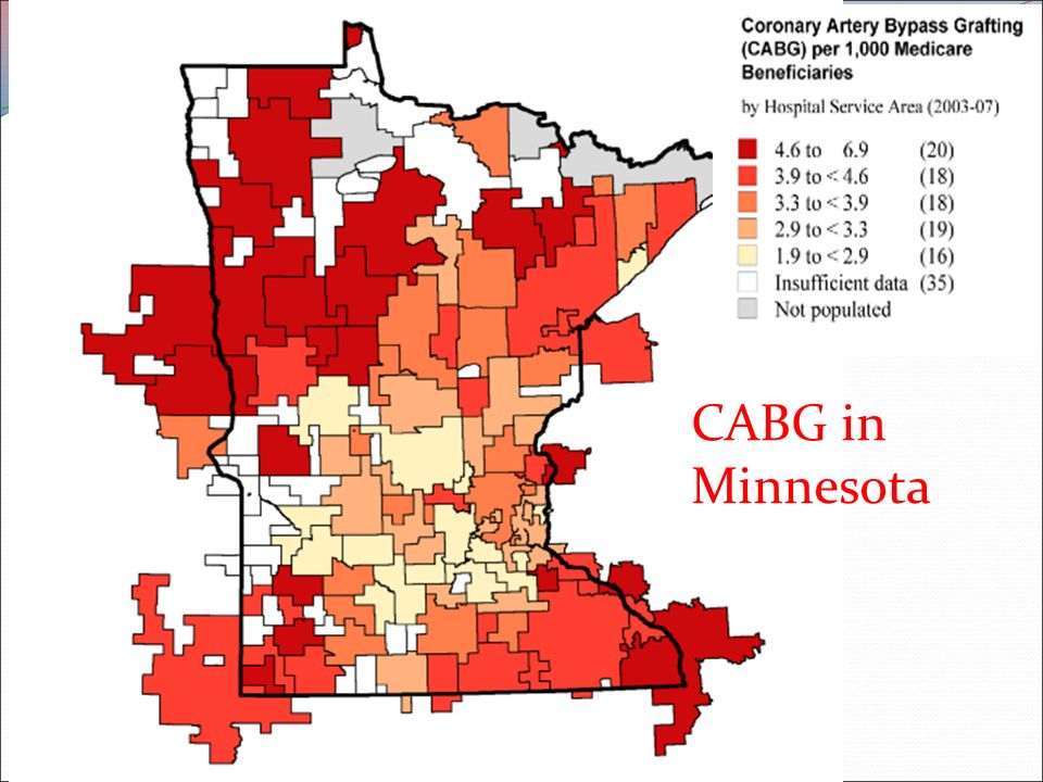 CABG in Minnesota