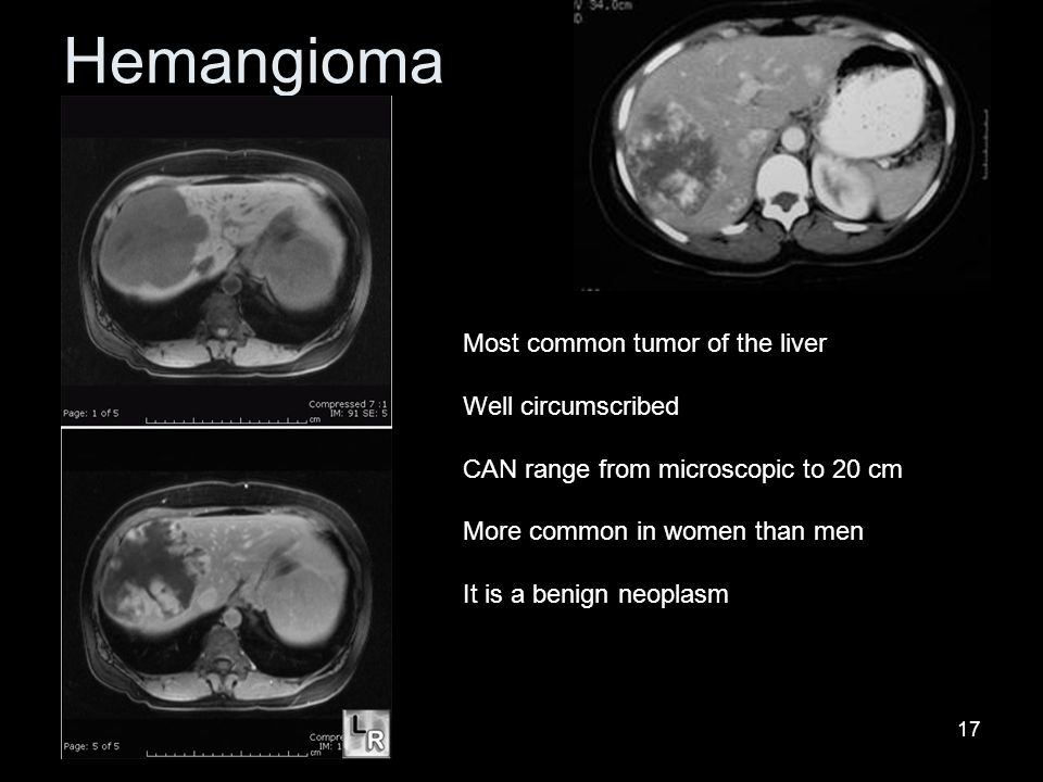 17 Hemangioma Most common tumor of the liver Well circumscribed CAN range from microscopic to 20 cm More common in women than men It is a benign neoplasm